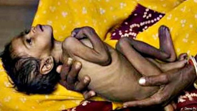 global hunger idex, report, malnutrition,india ,hunger,