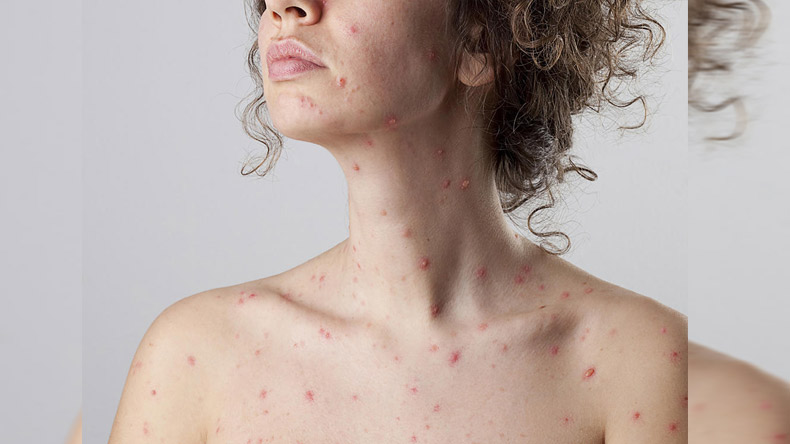 know-about-Chicken-Pox-Symp